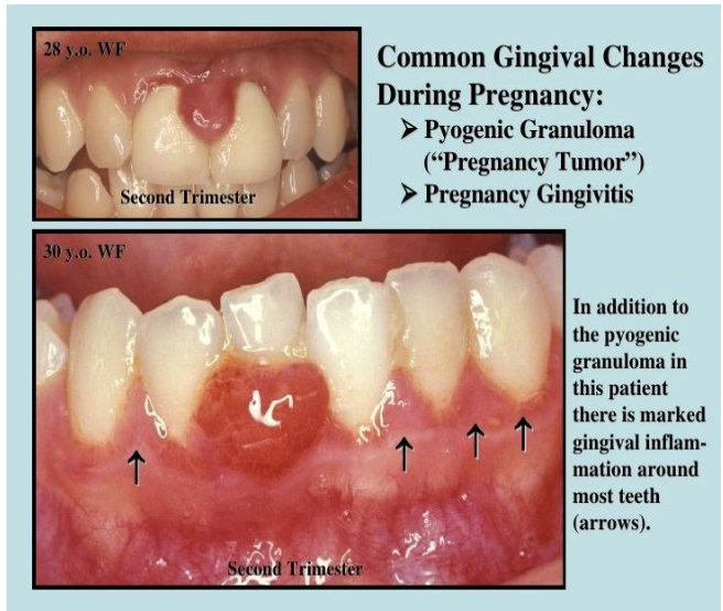 Figure 3. Common gingival changes during pregnancy